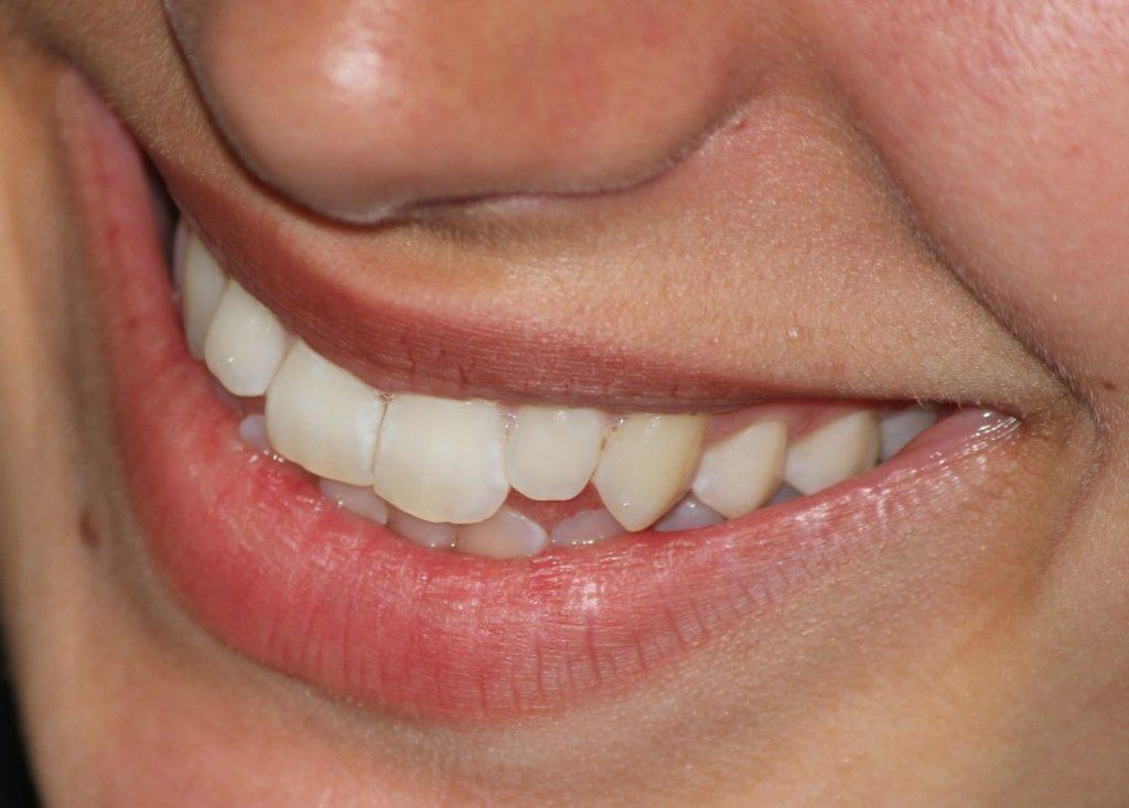 Pourquoi prendre soin de ses dents ?