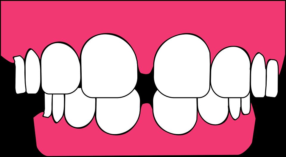 Bruxisme : Grincez-vous des dents ou serrez-vous les dents ?