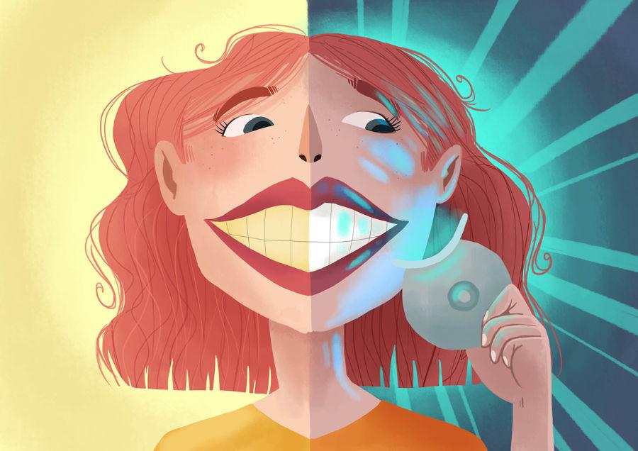 Un blanchiment dentaire est-il douloureux ?